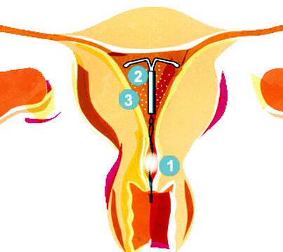 避孕环是什么东西