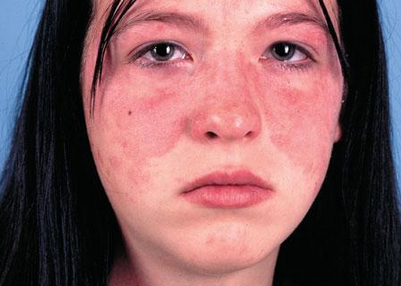 局部红斑狼疮是种我们常常会见到的皮肤疾病,如果治疗不当很可能会变