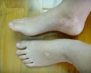 肢端型白癜风遗传吗