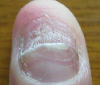灰指甲的临床表现有哪些