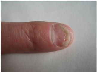 灰指甲怎么治疗最好