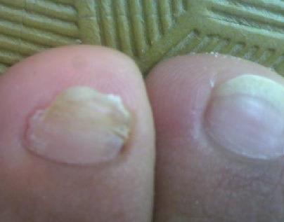 得灰指甲有什么症状