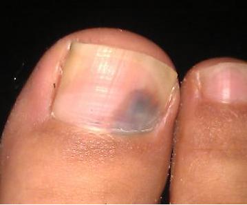 灰指甲的感染途径有哪些
