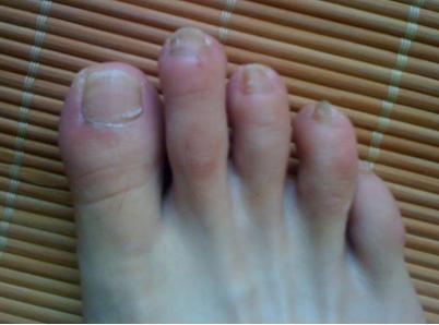 初期灰指甲治疗价格是多少呢
