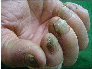 灰指甲是传染病吗
