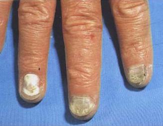 灰指甲初期怎么治疗