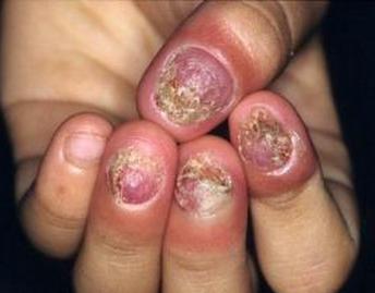 脚上长灰指甲的原因有哪些
