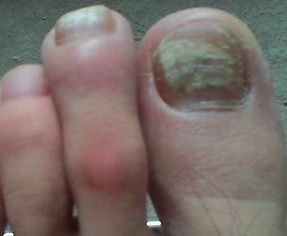什么原因导致灰指甲