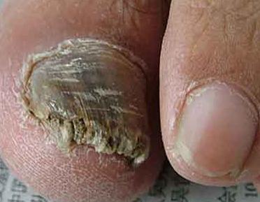 灰指甲治疗费用是多少
