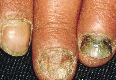 灰指甲刚有就会传染吗