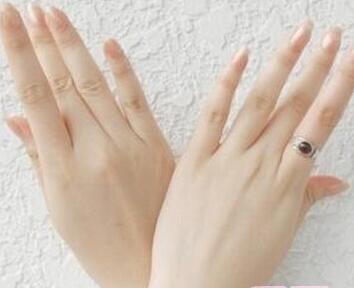 患上灰指甲会不会影响寿命