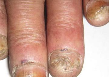灰指甲民间治疗偏方