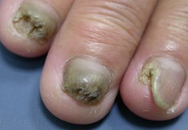 灰指甲前期怎么治疗