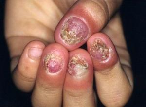 到底灰指甲的危害严重吗