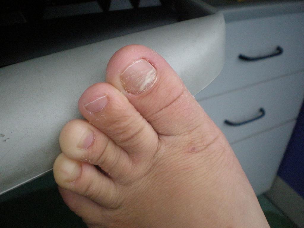 怎么治疗灰指甲不痛呢