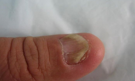 得了灰指甲减少寿命吗