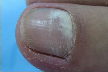 轻度灰指甲会遗传吗