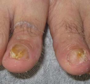 治疗灰指甲最好方法有哪些
