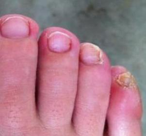 灰指甲如何预防比较好呢