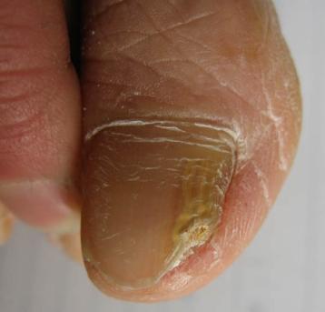 民间偏方治疗灰指甲都有哪些