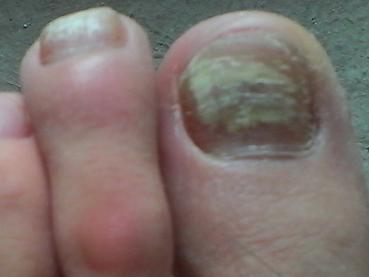 孕妇灰指甲怎么治疗