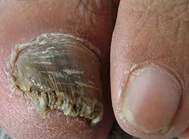 脚上灰指甲的检查项目有哪些