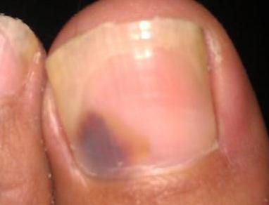 如何治疗灰指甲彻底