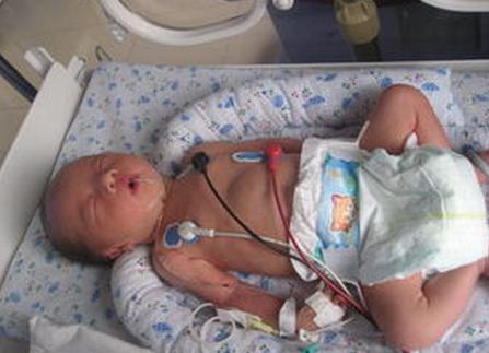 新生儿脑性瘫痪危害有哪些