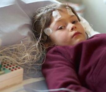 癫痫病的早期症状是_小孩癫痫病的早期症状_飞华健康网