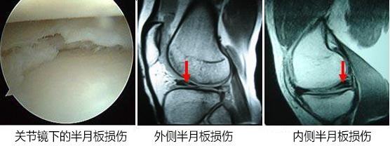 得了半月板损伤的主要危害有哪些