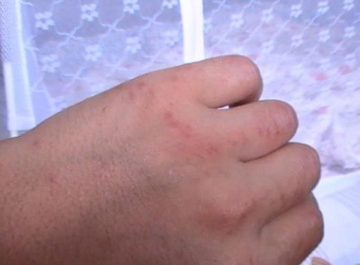 手背湿疹症状有哪些