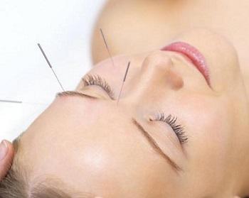 面肌痉挛针灸能治好吗