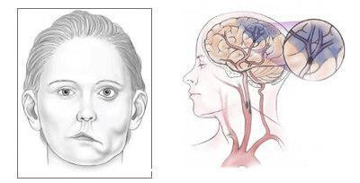 面肌痉挛会症状有哪些