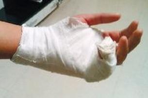如何预防手指骨折畸形