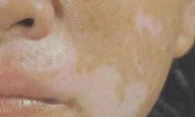 脸部患了白癜风应该怎样治