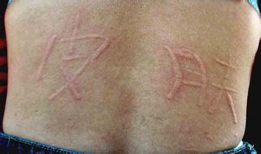 蕁麻疹皮膚劃痕癥的病因是什么