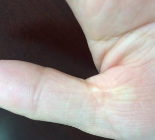 手指头腱鞘炎偏方都有哪些