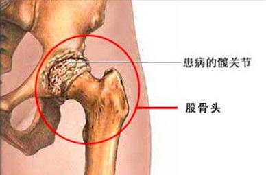 股骨頭壞死的臨床表現有哪些