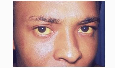 重型肝炎的引发诱因