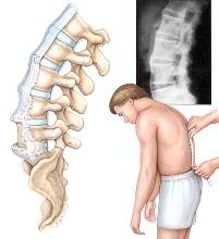 治疗强直性脊柱炎多少钱
