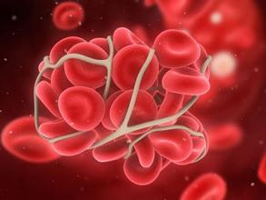 感染乙肝病毒的原因有哪些