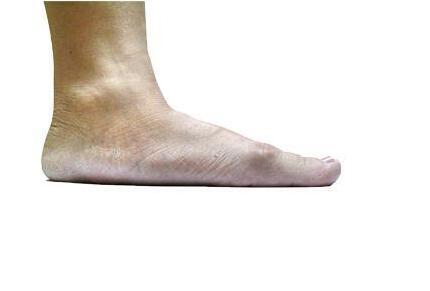 扁平足可以剧烈运动吗?该穿什么样的鞋子