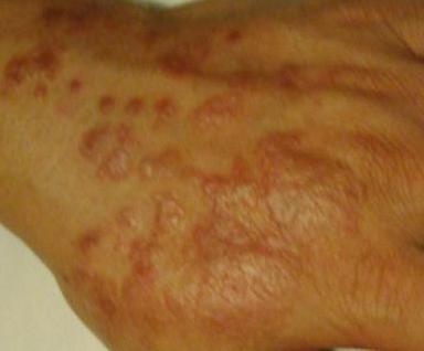 患扁平苔藓症状是怎样的