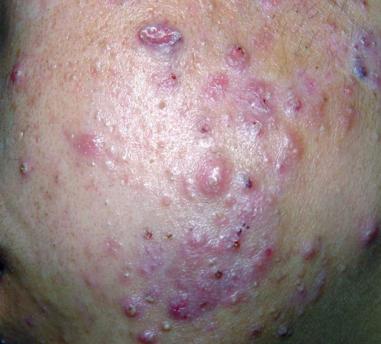 痤疮疤痕怎么治疗