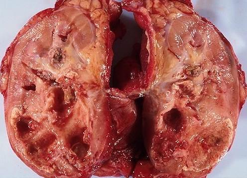 肾盂肾炎有效的治疗