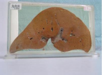 脂肪性肝炎与脂肪肝的区别有哪些