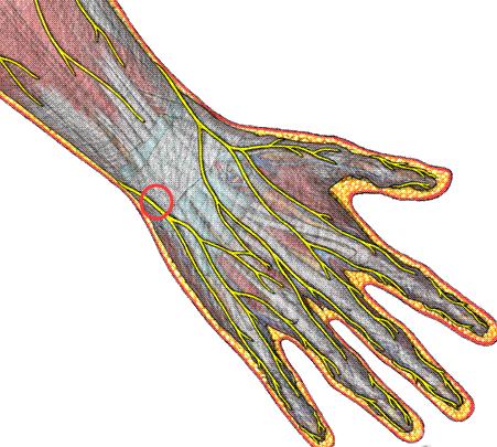 神经肌肉萎缩症危害有哪些方面