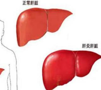 乙性肝炎有什么症状呢