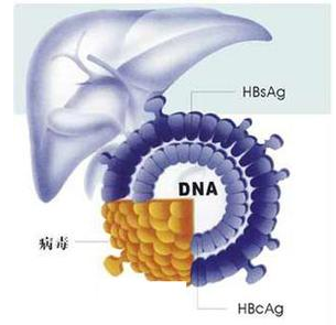 了解一下重症肝炎病因有哪些