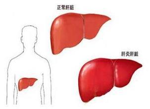 自身免疫抗体性肝炎诊断鉴别